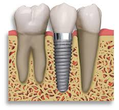 Dental-Implants-Central-Jersey-Dental-Monroe-Township-NJ-08831-b