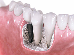 Dental-Implants-Central-Jersey-Dental-Monroe-Township-NJ-08831