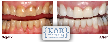 KöR Whitening Deep Bleaching Central Jersey Dental in Monroe Township NJ 08831