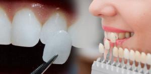 Porcelain Dental Veneers in Monroe Township, NJ