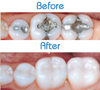 tooth-colored-white-fillings